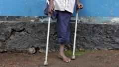 Alfons Dushime (10 Jahre) am 05.12.2008 im IDP Lager Mugunga in Goma, Demokratische Republik Kongo, wo er von der Hilfsorganisation Handicap International betreut wird.