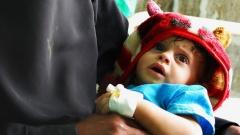 Die UN und ihre humanitären Partnerorganisationen  brauchen in diesem Jahr mehr als 2,4 Milliarden Euro, um kranken und hungernden Menschen im Jemen zu helfen.