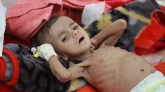 Ein unterernährtes Kind in einer Klinik im Jemen.