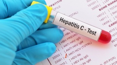 Hepatitis C Test