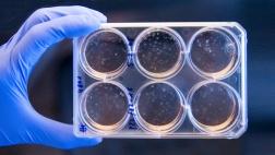 Forschung an menschlichen Stammzellen.