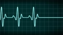 Monitor mit einer Herzkurve.