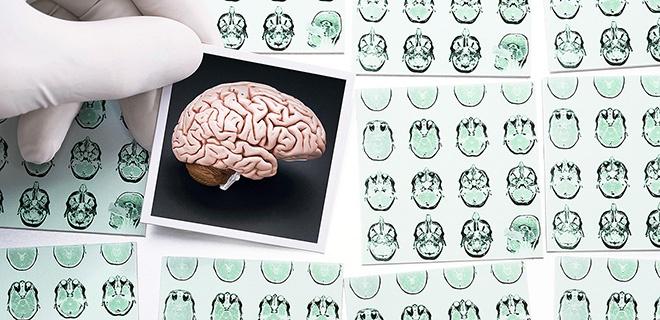 Gehirntumore bekämpfen